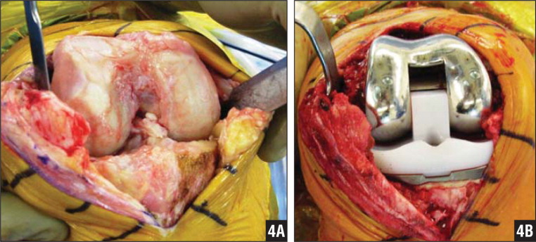 Intraoperative photographs showing the original knee joint (A) and the cemented, condylar-constrained prosthesis (B).
