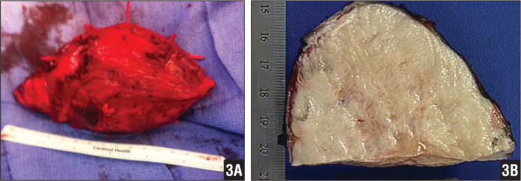 Intraoperative photograph showing a large mass measuring >15 cm (A). Gross photograph showing a fairly well circumscribed homogeneous finely granular tan cut section of the tumor mass (B).