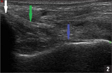 Ultrasonogram showing an intact deltoid ligament with the probe in the coronal plane. The white arrow indicates the medial malleolus, the blue arrow indicates the talus, and the green arrow indicates the intact deltoid ligament.