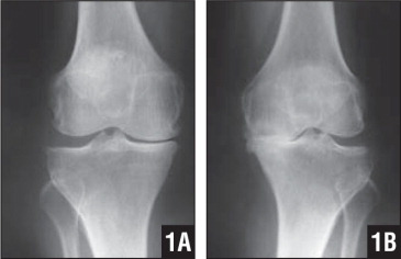 Preoperative weight-bearing standing AP radiographs of the right (A) and left (B) knees show severe destruction of the articular cartilage in the medial compartment with a varus deformity.