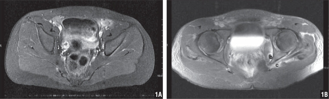 Patient 2's pelvis MRI with contrast done on the first day of admission. Inflammatory changes are shown in the obturator internus muscle (a) (A). Patient 3's pelvis MRI with contrast done on hospital day 3. A small abscess is surrounded by inflammatory changes within the obturator internus muscle (b). Inflammatory changes in the gemellus muscle are shown adjacent to the obturator internus tendon (c) (B).