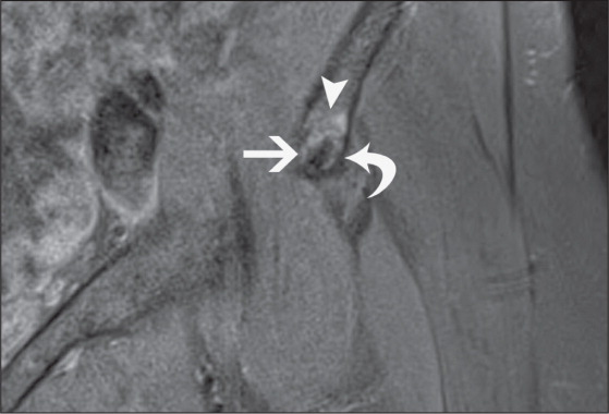 Proton Density-Weighted, Fat-Suppressed Coronal Image of the Left Hip Showing a Hypointense Calcific Focus (straight Arrow) Extending into the Anterior Inferior Iliac Spine (curved Arrow). High-Signal Bone Marrow Edema Is Seen in the Anterior Inferior Iliac Spine (arrowhead).