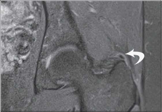 Proton Density-Weighted, Fat-Suppressed Coronal Image of the Left Hip Showing a Well-Defined, Hypointense Calcific Focus Adjacent to the Greater Trochanter (straight Arrow).