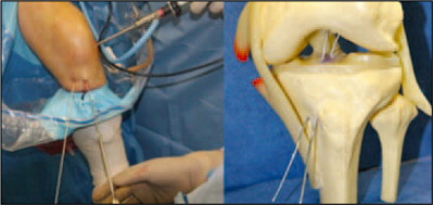 The Positions of the Tibial Guides Are Shown. Notice Both Guides Are Inserted Through Independent Incisions, and the Pins Are Slightly Convergent, as the Distance Between the Entrance Tunnels and the Exit Tunnels Is not Equal.