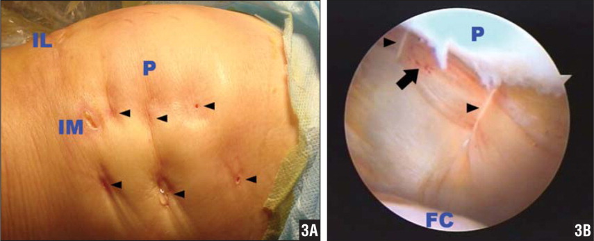 After re-evaluation of patellar tracking, the sutures were tightened and knotted with the knots buried subcutaneously (A, arrowheads). The medial reefing (arrowhead) was checked again under arthroscope (B). Bold arrow: bruise of medial patellofemoral ligament. Abbreviations: FC, femoral condyle; IL, inferolateral portal; IM, inferomedial portal; P, patella.