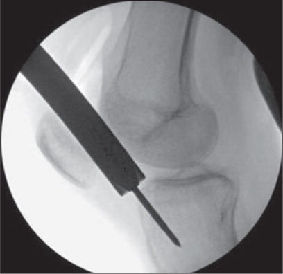 Lateral fluoroscopic image showing the retropatellar portal technique for tibial nailing.