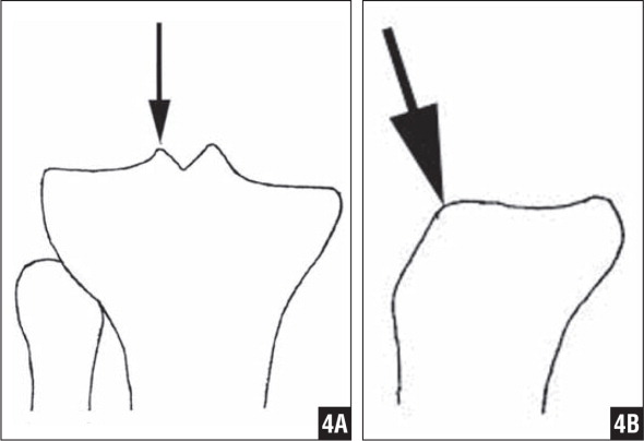 On the AP view, the ideal entry site for a proximal tibial fracture nailing should be aligned with the lateral tibial eminence (A). On the lateral view, the ideal entry site should be more proximal (B).