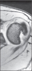 MRI revealing a large posterolateral humeral head defect.