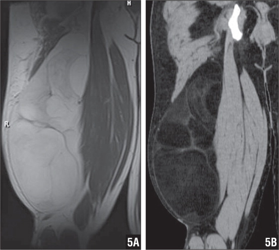 Atypical lipomatous tumor/well-differentiated liposarcoma of the thigh appears as a large fatty mass with septations but no nodules of nonlipomatous tissue. The large lipomatous tumor within the biceps femoris muscle fascia appears similar to subcutaneous fat on coronal T1-weighted fast spin echo MRI (A) and coronal CT reconstruction (B).