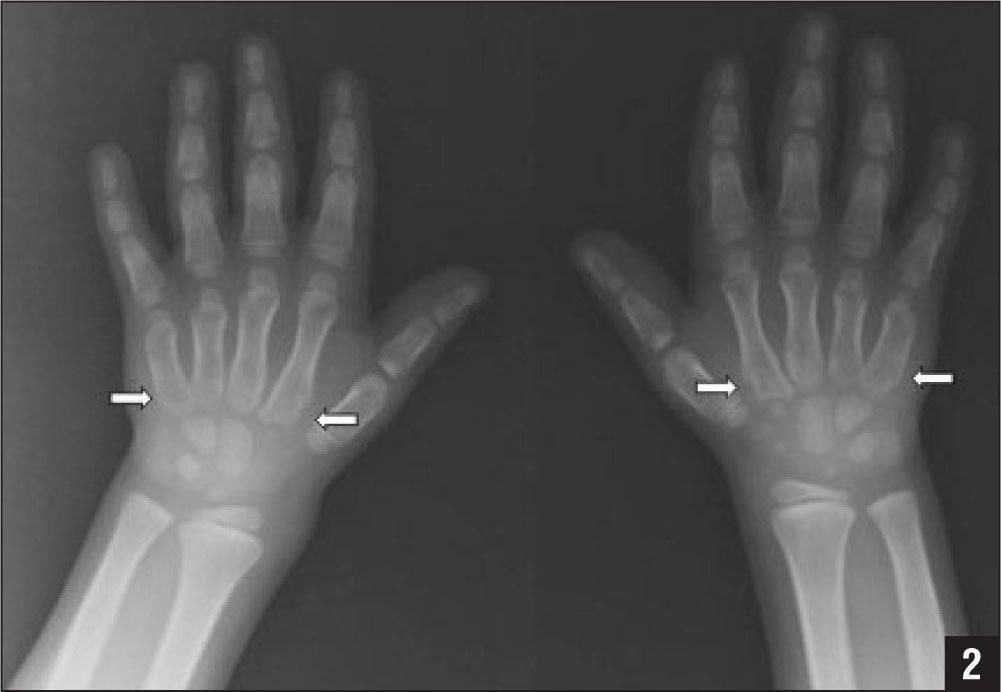 Anteroposterior hand radiograph of the patient at age 9 years showing metacarpal notching (arrows).