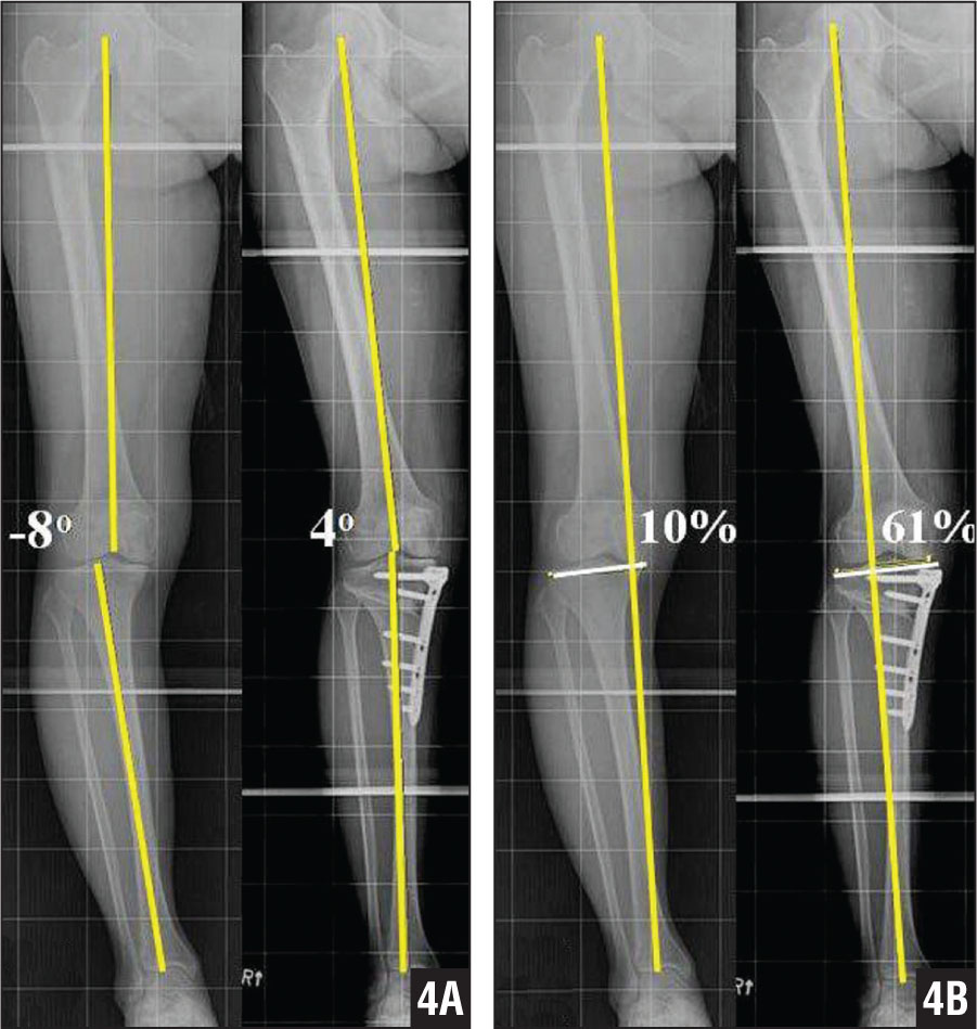 High tibial osteotomy physical therapy - Radiograph Showing The Mechanical Tibiofemoral Angle Defined As The Angle Between The Line Connecting The