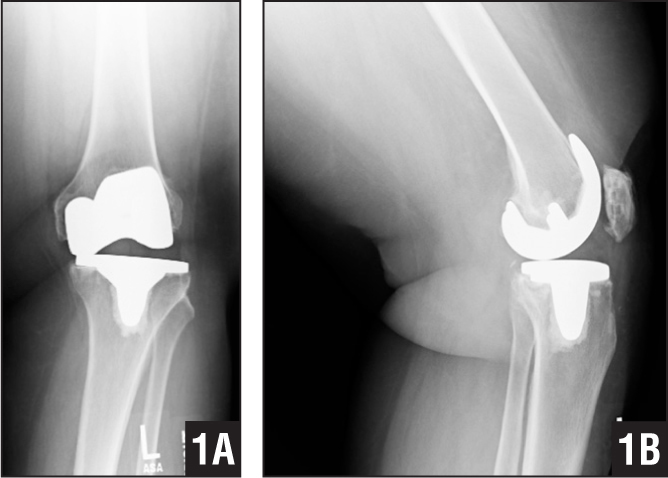 Anteroposterior (A) and lateral (B) radiographs of a left knee 6 years postoperatively when the patient sustained a traumatic twist of the knee. Note the bearing spinout.