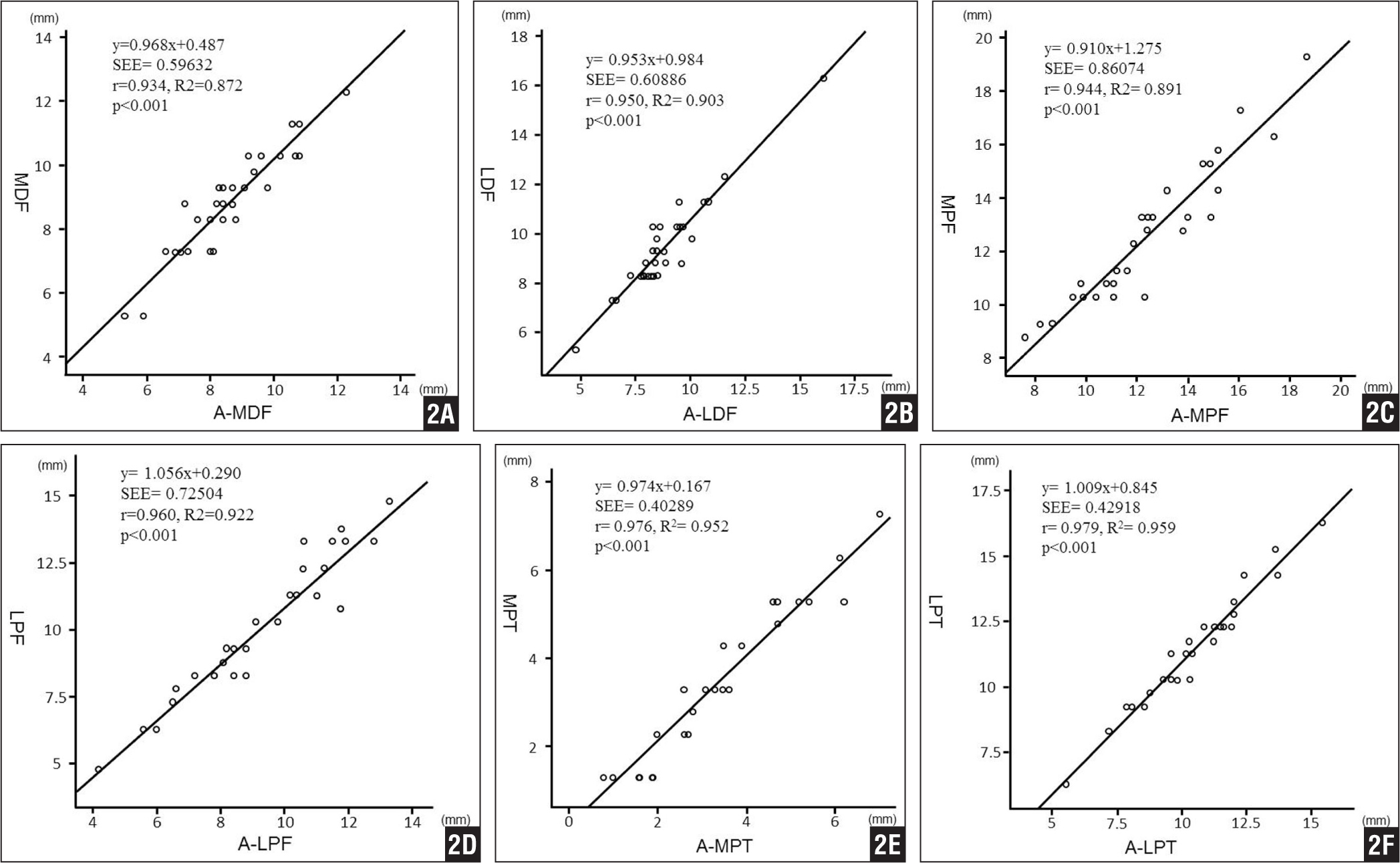 Linear regression analysis revealing statistically excellent correlation between the intraoperative values and measured postoperative values of the medial (MDF) (A) and lateral (LDF) (B) condyles of the distal femur, medial (MPF) (C) and lateral (LPF) (D) condyles of the posterior femur, and medial (MPT) (E) and lateral (LPT) (F) proximal tibias (P<.001). Abbreviations: A, Athena Knee (SoftCube Co, Ltd, Osaka, Japan) postoperative value; SEE, standard error of the estimate.