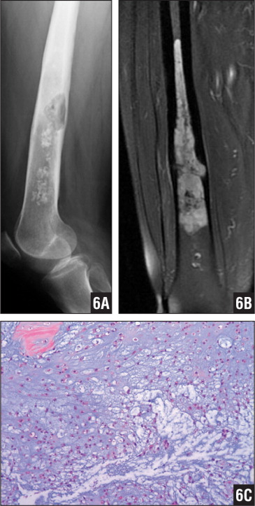 Radiograph (A) and T2-weighted magnetic resonance image (B) showing a myxoid chondrosarcoma at the femoral diaphysis. Photomicrograph showing a typical myxoid background. The lesion is more cellular than grade 1 chondrosarcoma, and the cells are slightly more atypical (hematoxylin-eosin stain ×10) (C).