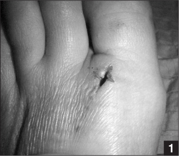 Postoperative photograph of the wound at 1-month follow-up.