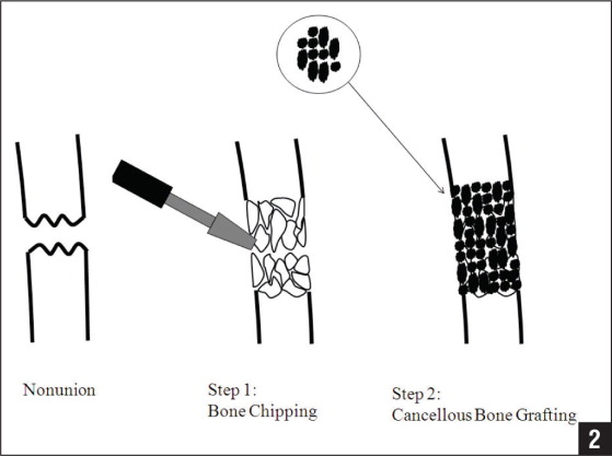 Diagram Showing 2 Steps Of The Procedure Step 1 Bone Chipping Both Ends
