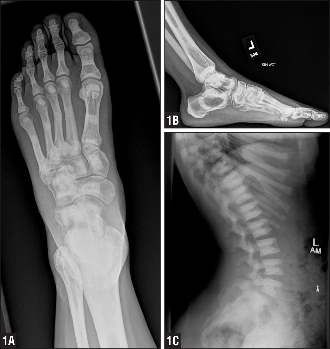 Anteroposterior (A) and lateral (B) radiographs of the right foot and lateral radiograph of the spine (C).