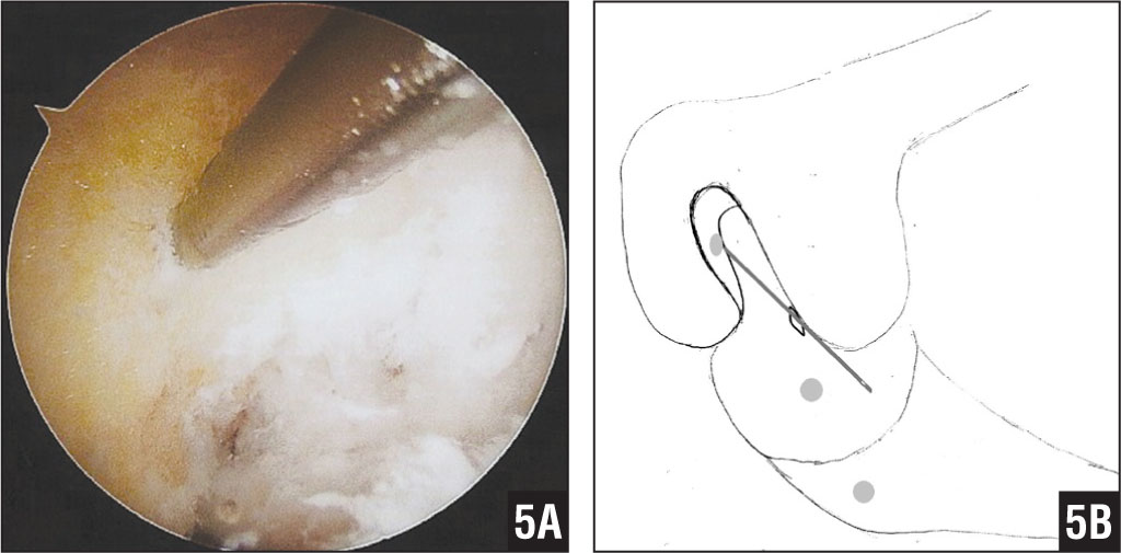 Arthroscopic image of the femoral guidewire in place at the 10-o'clock position (A). Diagram of the femoral guidewire placed at the 10-o'clockposition (B).
