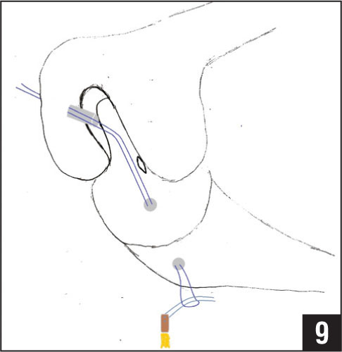 Diagram of the passing suture used to pass the graft through the tibial and femoral tunnels.