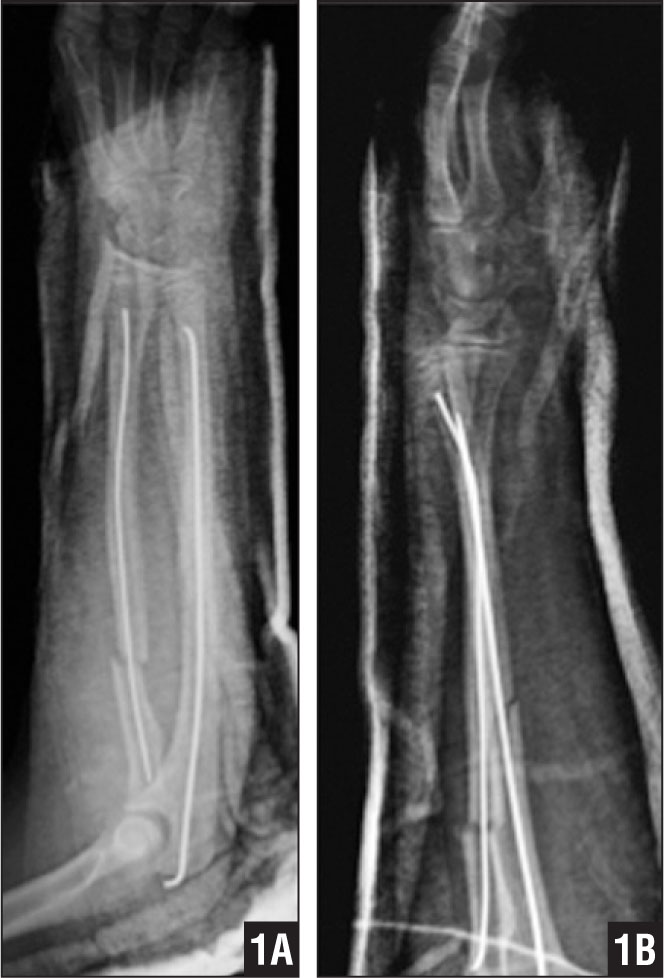 Anteroposterior (A) and lateral (B) immediate postoperative radiographs from closed reduction and intramedullary fixation.
