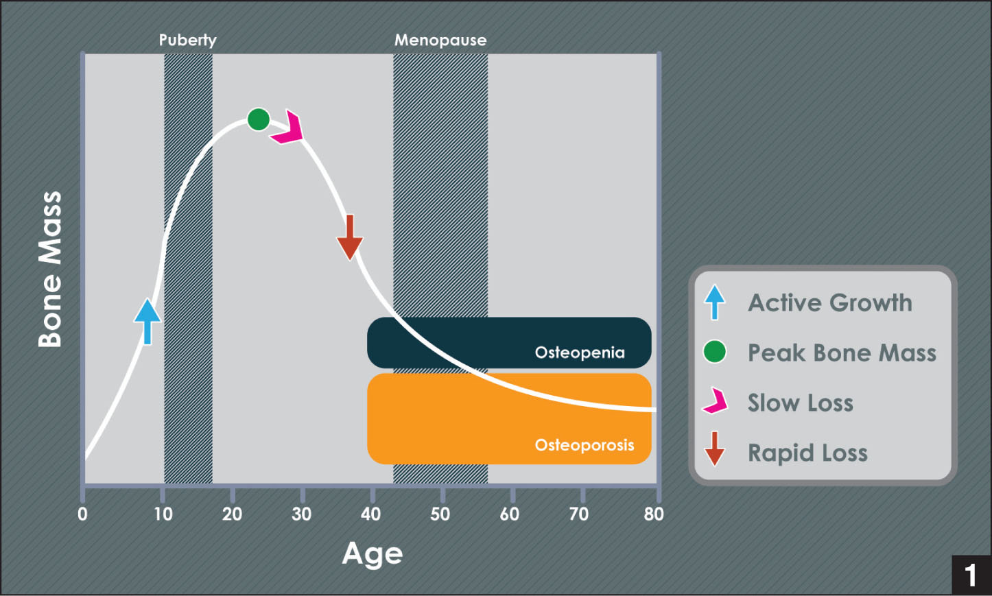 Bone mass life cycle. During the normal bone mass life cycle, a steady increase in bone mass occurs through puberty that typically peaks near the third decade of life. Once it has peaked, bone mass is subject to a slow loss phase followed by a rapid loss phase. This decrease in bone mass commonly results in osteopenic bone and then osteoporotic bone, particularly in menopausal women. Adapted from Ilich and Kerstetter.1