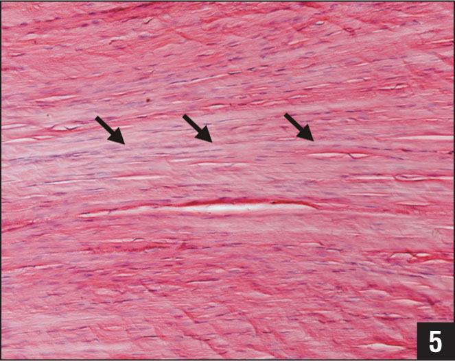 Effect of nonoperative treatment on the histology of a rat Achilles tendon 8 weeks after transection and suture were performed. The histological pattern is close to a normal Achilles tendon with lined-up fibrocytes (arrows) and big bundles of collagen starting to synchronize (hematoxylin-eosin stain, original magnification ×200).