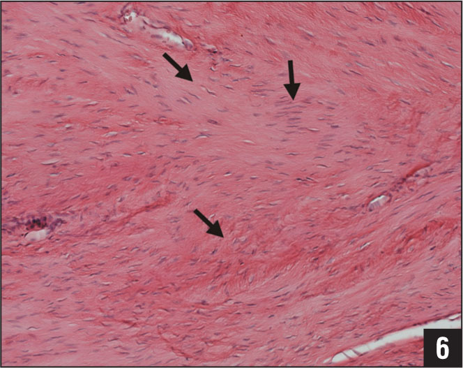 Effect of operative treatment on the histology of a rat Achilles tendon 8 weeks after transection and suture were performed less organized collagen (arrows) and scar tissue and hypercellularity are visible (hematoxylin-eosin stain, original magnification ×200).