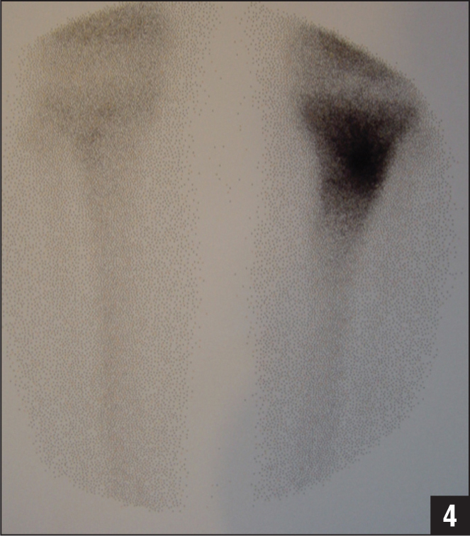 A 16-year-old boy presented with a 1-year history of knee pain but normal clinical examination. Radionuclide bone scan image showing a wide zone of increased uptake in the proximal tibia due to increased osteoblastic activity provoked by an osteoid osteoma.