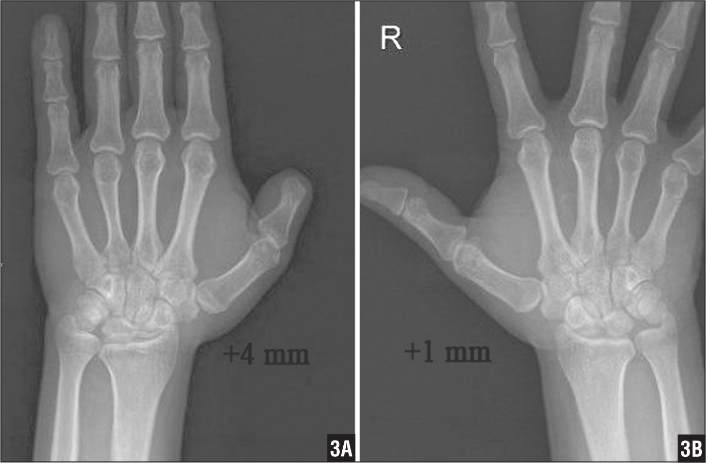 Bilateral anteroposterior radiographs of the wrists revealing a 3-mm increase in the ulnar variance in the left wrist (A) compared with the uninjured right wrist (B) in a 38-year-old man with 10 years of follow-up.