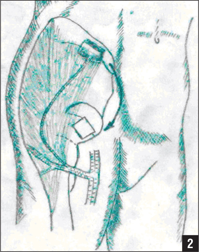 Illustration showing a vascularized iliac graft supported by the ascending branch of the circumflexa femoris lateralis taken from the anterosuperior iliac crest. It was approximately 5 cm long and 3 cm wide, with a vascular pedicle long enough for transfer. An attempt was made to elevate the collapsed segment of the femoral head intraoperatively with impaction instruments through a 233-cm bone window created at the femoral head–neck junction and supported by the autologous vascularized iliac graft.