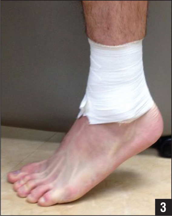 Photograph of the distal tibia and fibula stabilized with athletic tape. The patient was able to perform a single-leg heel raise once the tape was applied.
