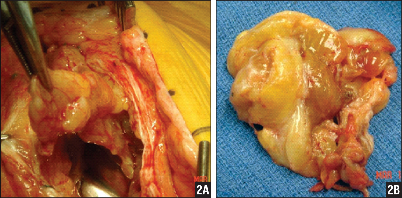 Intraoperative photographs showing extensive synovitis prior to debridement (A) and a gross pathologic specimen of the hypertrophic synovitis removed during revision surgery (B) (patient 1).