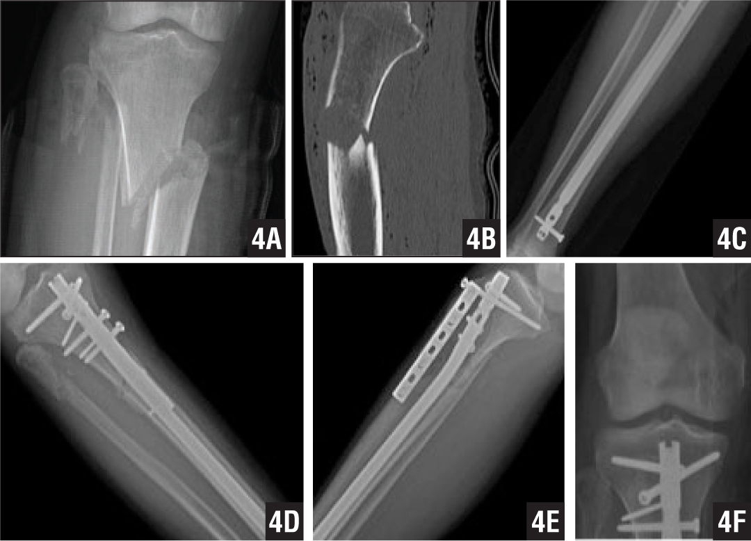 One-year Postoperative Knee Pain in Patients With Semi ...