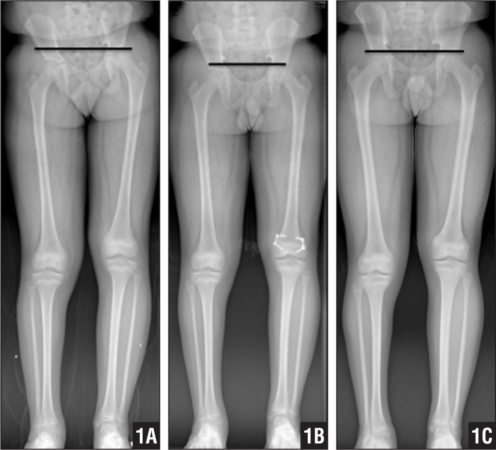Guided Growth for the Treatment of Moderate Leg-length Discrepancy