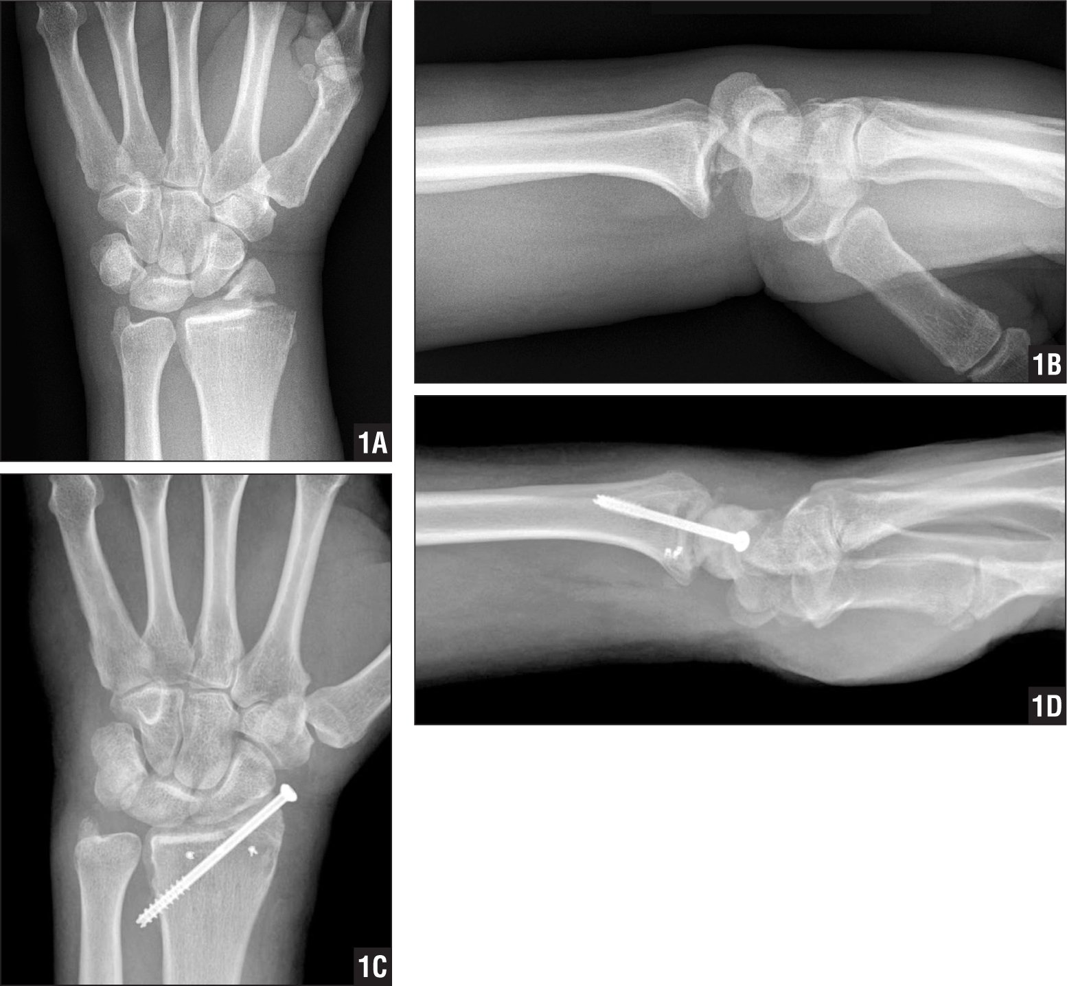 Preoperative posteroanterior (A) and lateral (B) radiographs taken before reduction showing a dorsal radiocarpal dislocation in a 47-year-old man with an associated radial styloid fracture. Significant laxity was evident intraoperatively, with both dorsal and volar subluxation of the carpus with manipulation evident on fluoroscopy. Postoperative posteroanterior (C) and lateral (D) radiographs showing restoration of radiocarpal alignment with screw fixation of the radial styloid fragment and repair of the volar capsuloligamentous complex with suture anchor fixation.