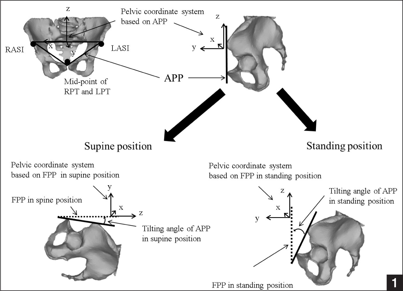 Medical abbreviations tha - The Anterior Pelvic Plane App And Functional Pelvic Plane Fpp Defined In