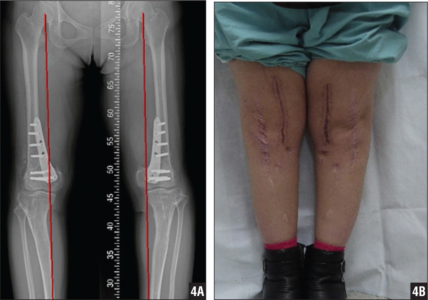 how to fix knock knees in adults with surgery