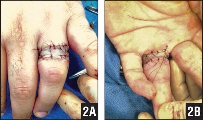 Intraoperative dorsal (A) and palmar (B) photographs of a full-thickness 8×2-cm skin graft being placed on the ring burn defect.