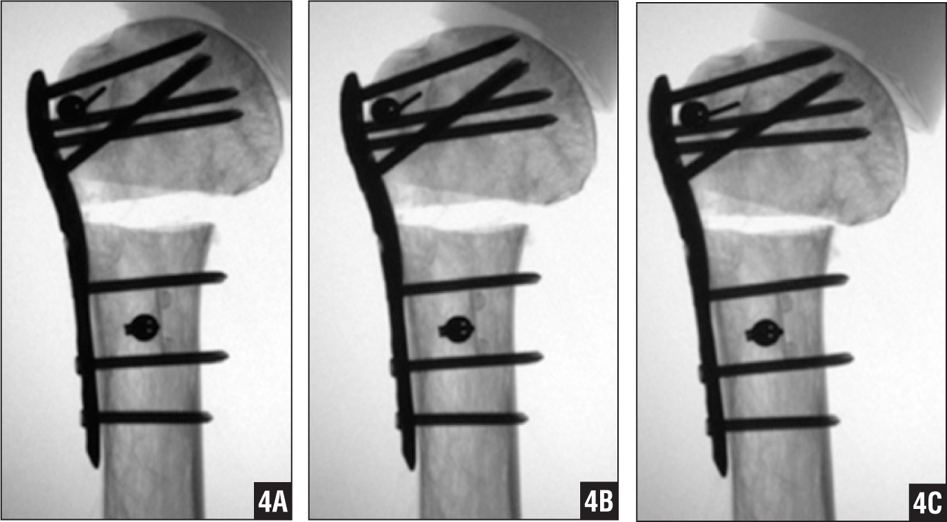 Fluoroscopic radiographic images showing head migration during the cyclic test after 1000 (A), 2000 (B), and 3000 (C) cycles. Head migration was defined as the total translation in the coronal plane of the most medial aspect of the humeral head at the osteotomy level with respect to the shaft. Subsequently, a cranial cut-through of the fixed-angle screws can be observed.