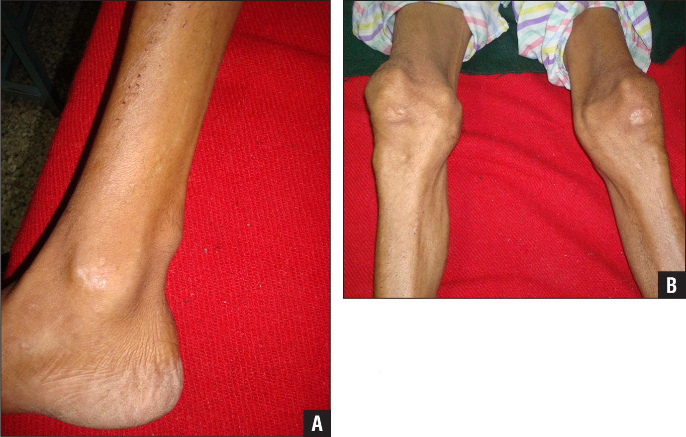 Preoperative anterior photograph showing subcutaneous nodules over the Achilles tendon (A). Preoperative lateral photograph showing subcutaneous nodules over the knees (B).