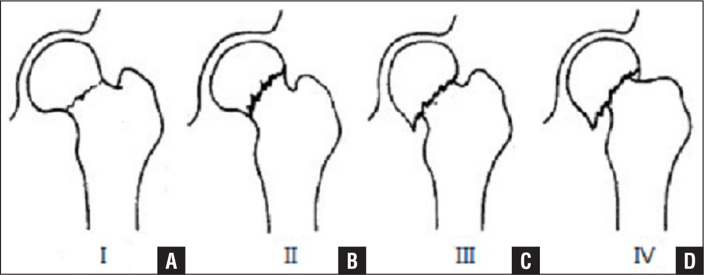 Illustration showing a Garden I incomplete fracture (A), Garden II complete fracture without displacement (B), Garden III complete fracture with partial displacement (C), and Garden IV complete fracture with full displacement (D).