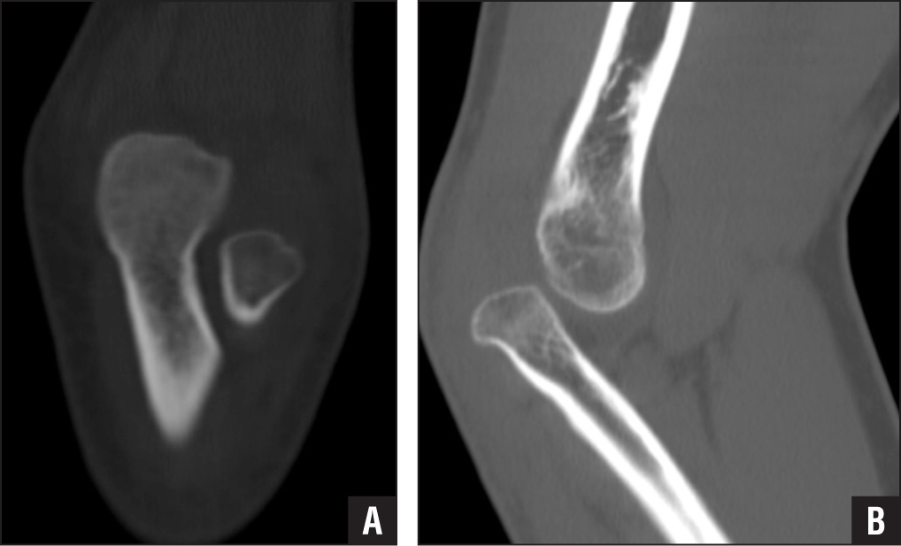 Coronal (A) and sagittal (B) computed tomography scans of the left elbow showing the dysplastic (A) and dislocated (B) radial head. It is important to note that computed tomography is not required for the diagnosis of a congenital radial head dislocation. Computed tomography was performed in this case to rule out other pathology because the patient presented after a high-energy trauma.