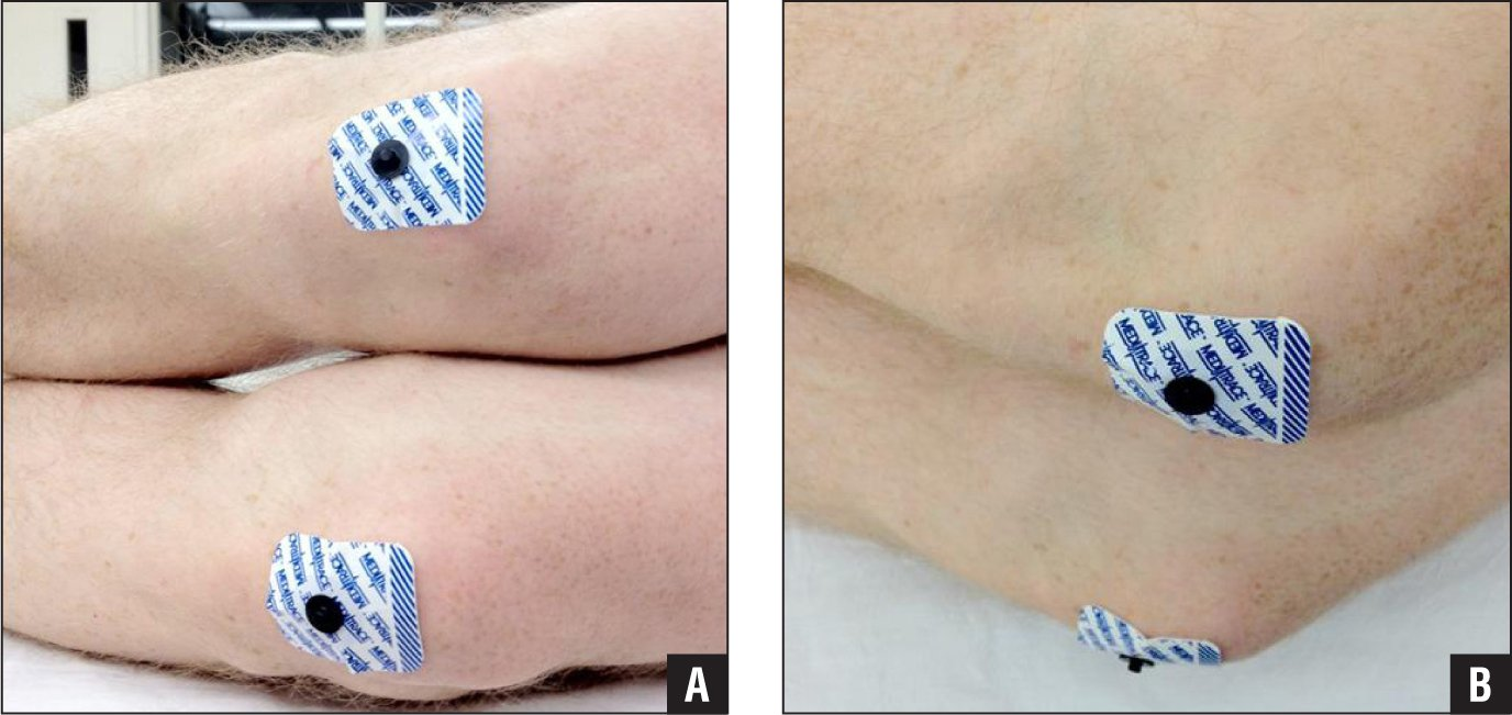 Preoperative photographs of the patella lead method: front view (A) and side view (B).