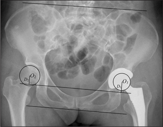 Calculating superior displacement of the hip center on a postoperative anteroposterior radiograph obtained after arthroplasty. The parameters used to measure displacement are shown. Abbreviations: D1, distance of the reconstructed hip center to the inter-teardrop line; D2, distance of the normal hip center to the inter-teardrop line; O1, hip center of the affected side; O2, hip center of the normal side.
