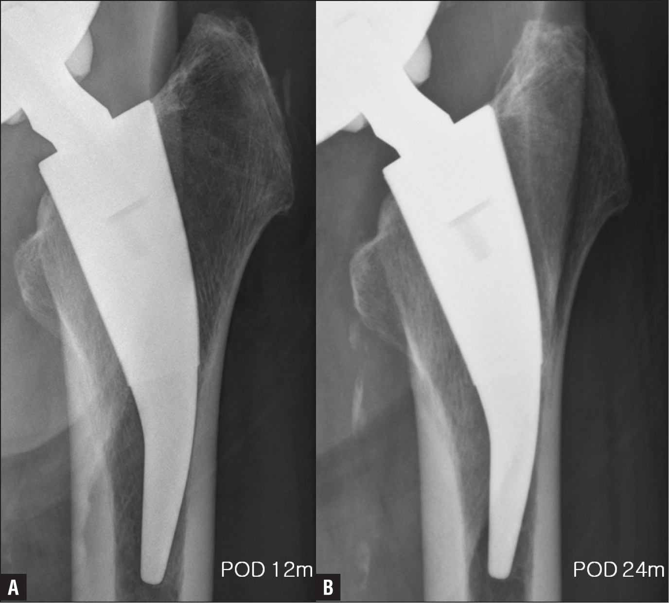 Radiographs of a 75-year-old man showing no reactive radiodense line at 12 months (A) and 24 months (B) postoperatively.