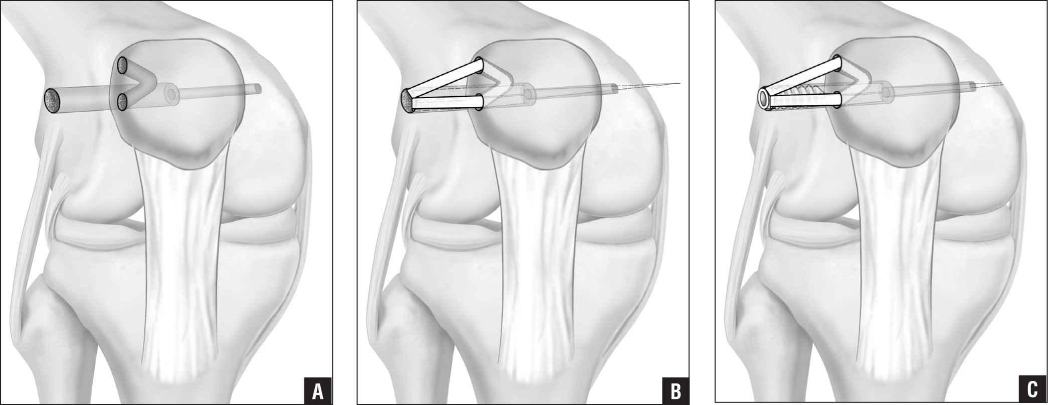 Lateral Patellofemoral Ligament Reconstruction Using A Free Gracilis