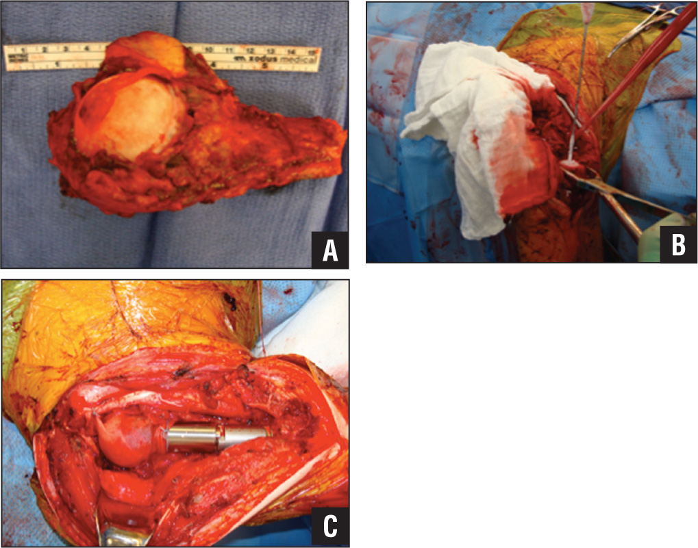 Humeral head removed from the humeral diaphysis with known skip lesions (A). Cryoprobe intramedually insertion to maintain maximal structural integrity of the diaphysis while causing destruction of skip lesions (B). Placement of intramedullary nail to increase structural integrity (C).