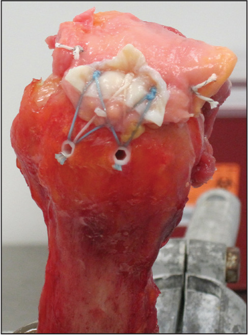 Modified, double-row, transosseous equivalent rotator cuff repair with an extracellular matrix augmentation graft.