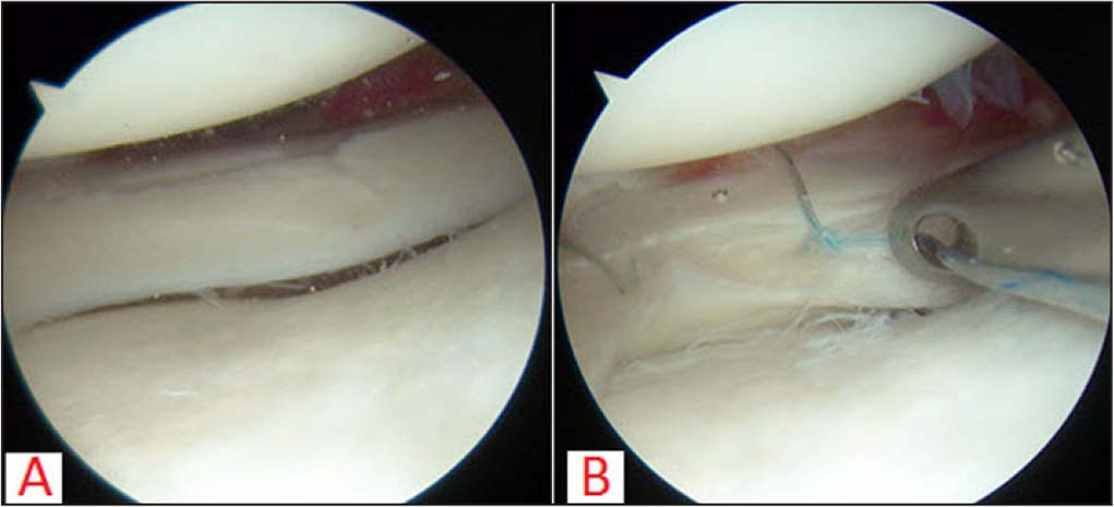 Intraoperative arthroscopic view of a red-white zone vertical tear of the lateral meniscus that extends anteriorly just past the popliteus tendon in a right knee (A). The tear is repaired in vertical mattress fashion with all-inside suture devices (B).