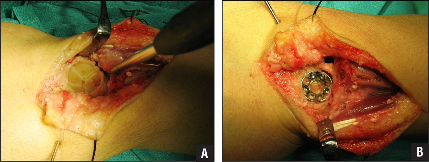 Intraoperative dorsal photographs. A conical rasp is used to burr out an accepting bed for the circular plate (A). The circular plate is placed, the bones are drilled, and screws are placed (B).